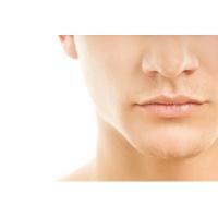 痛みの少ないメンズヒゲ脱毛(施術30分)